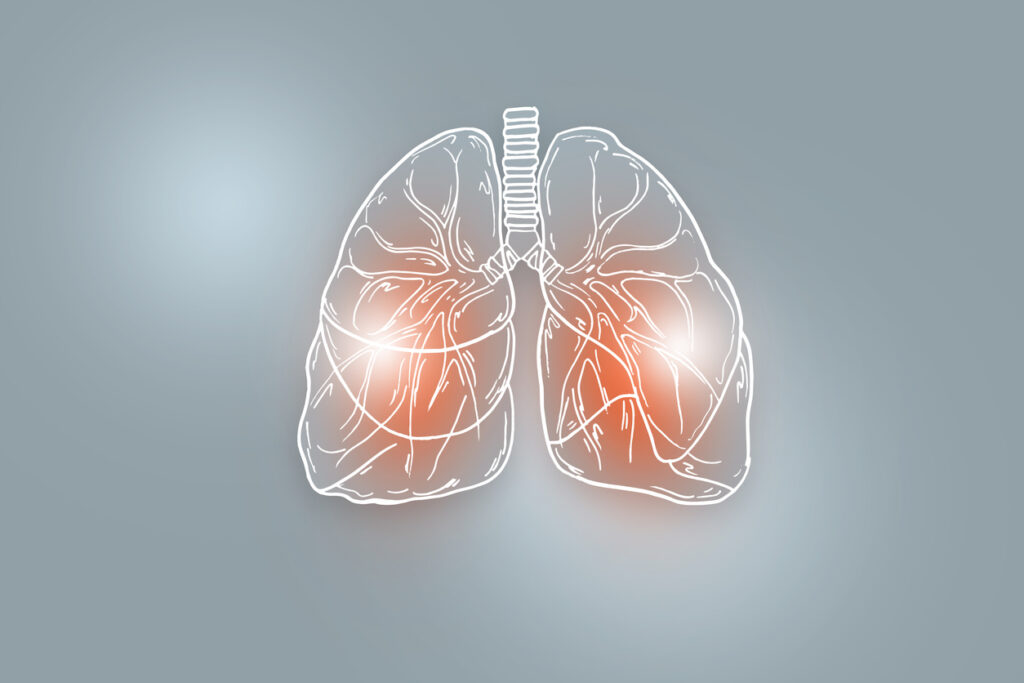 lungs, 3m lungs, lung cases, lung damage